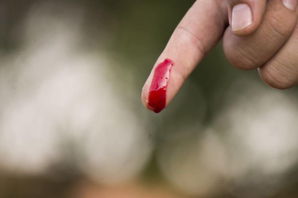 wound finger.jpg