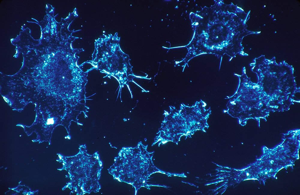 Cyproheptadine cancer.jpg