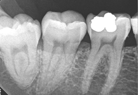 Pre treatment lower first molar.jpg