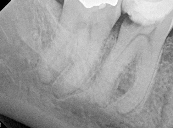 Dental caries causing pulpal damage.jpg