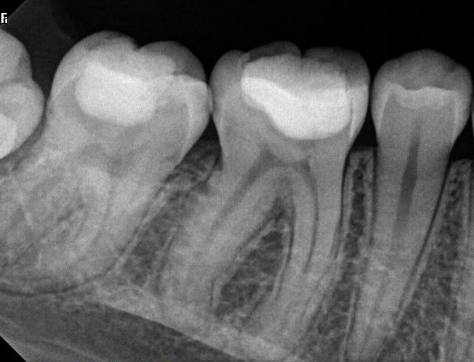 Before - Lower first molar