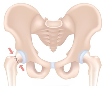 resized hip.png