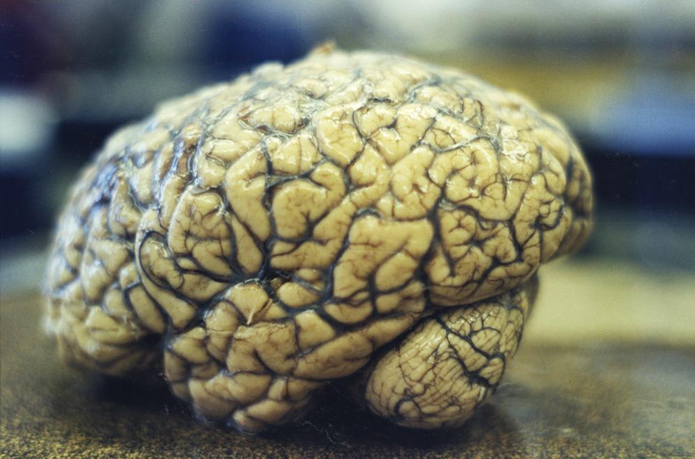 I was a Sixth Grade Alien (1999) - 'Grandfather's brain'