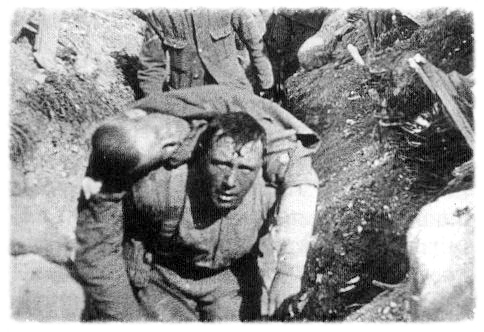 A British soldier carries a mortally wounded comrade to an aid station.
