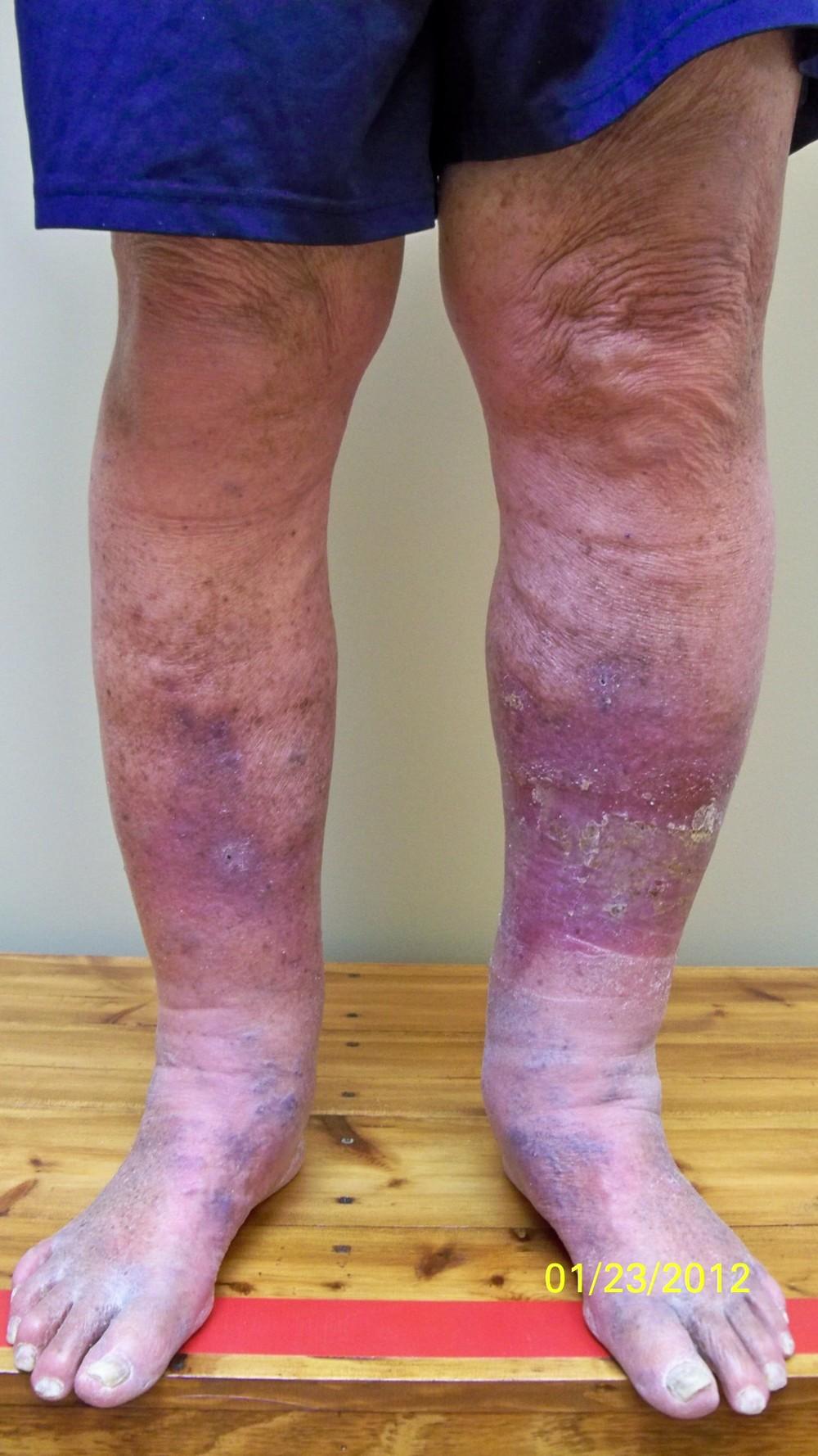 Post Thrombotic Syndrome Pts Symmetry Laser Vein Center