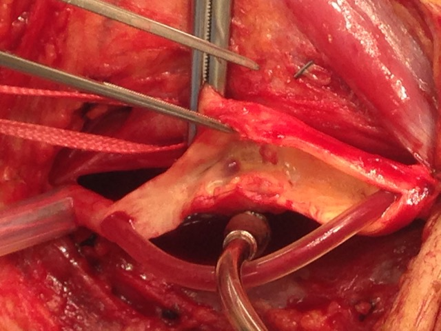 Intra-operative picture: plaque in carotid, note shunt carrying blood to brain