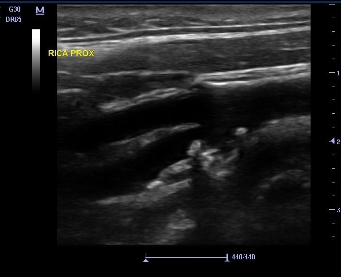 Ultrasound of carotid stenosis