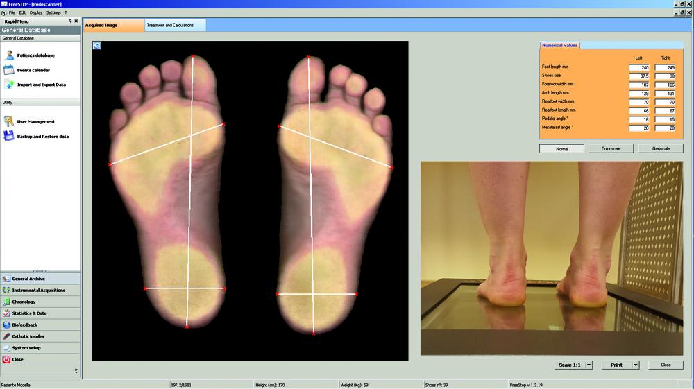 Plantillas ortopedicas a la medida