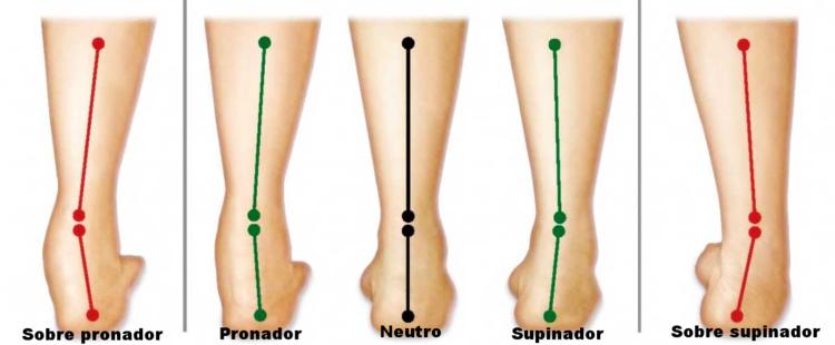 6c4abd879a3 Plantillas ortopédicas