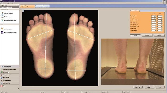 Escáner podálico 2D