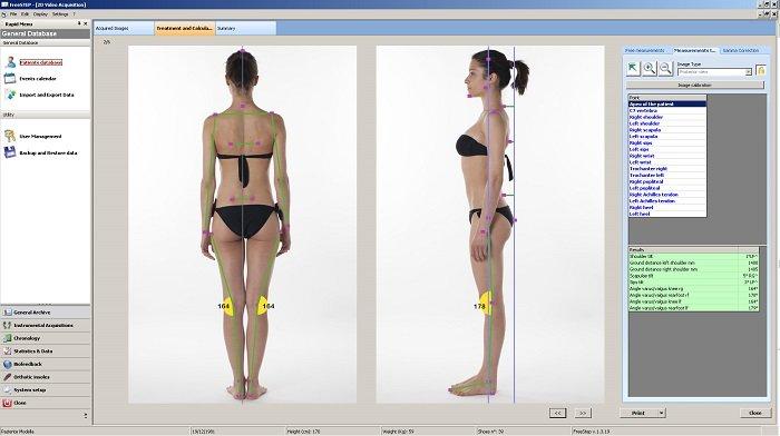Análisis postural