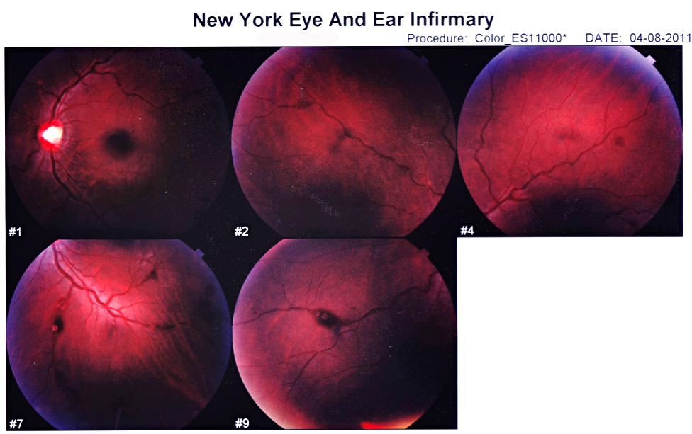 """granta: Retinal scans of Teju Cole's eyes, courtesy of the author. Blind Spot:http://www.granta.com/New-Writing/Blind-Spot """"Was I like those highly suggestible people who, out of sympathy with something written, drift into an area of darkness?"""""""