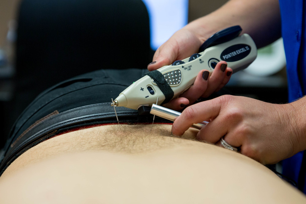 using electrical stimulation with the dry needling treatment