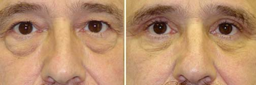 Eyelid Lift 1