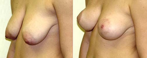 breast-lift-wellesley.jpg