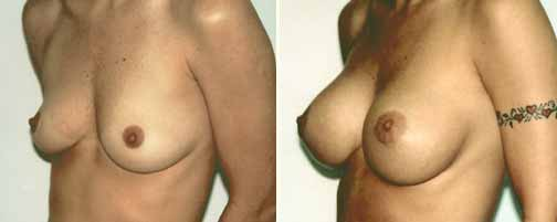 Breast Augmentation 10
