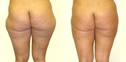 Liposuction 3