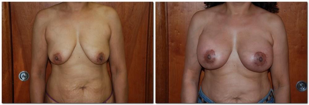 Breast lift 3