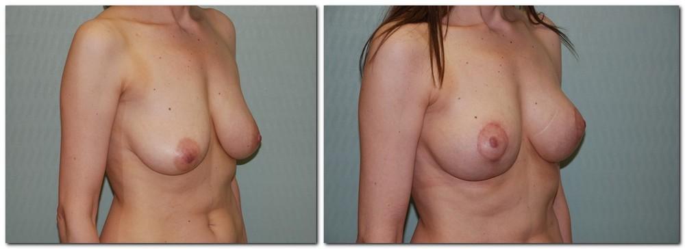 Breast lift 8