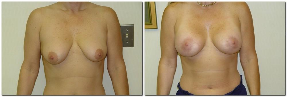 Breast lift 11