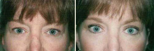 Eyelid 9