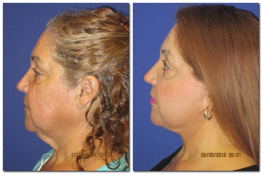 A 67 year old before and after a face and neck lift