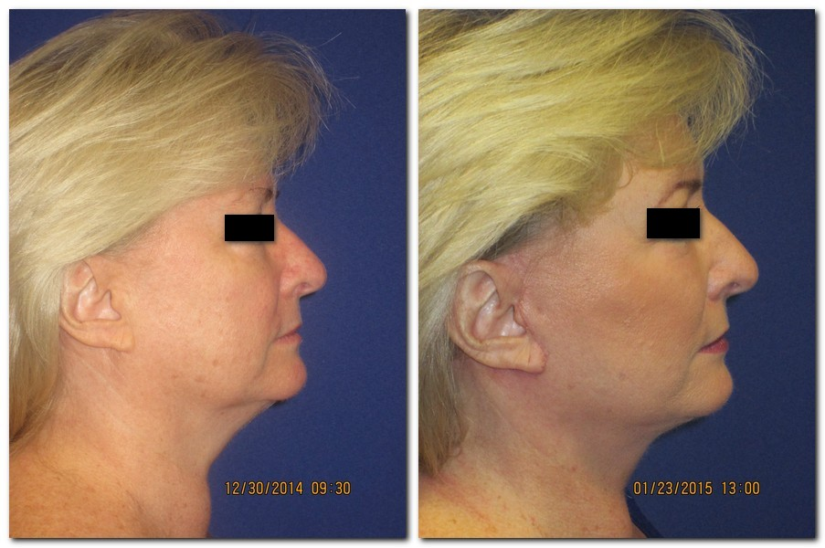 A 57 year old a month after a facelift