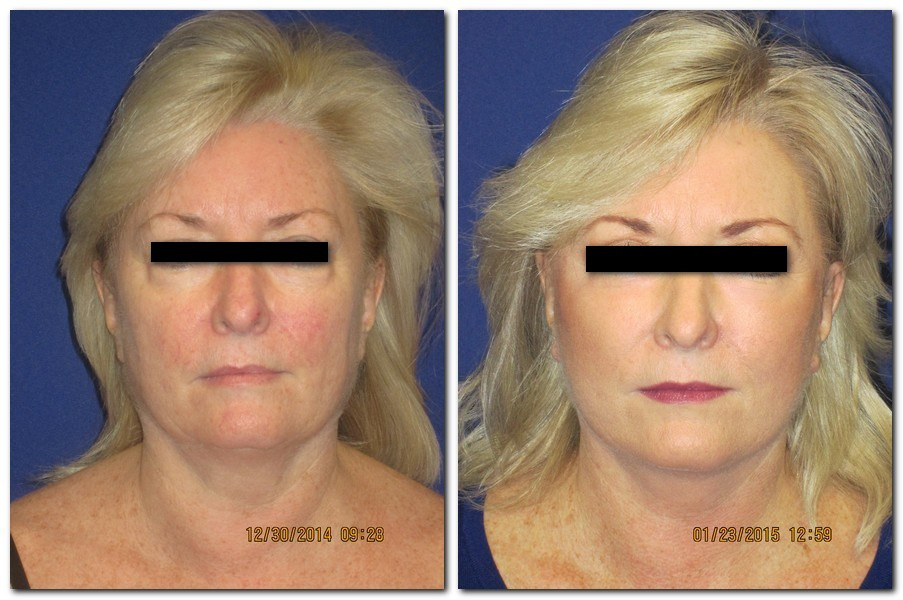 A 57 year old before and 1 month after a face and neck lift