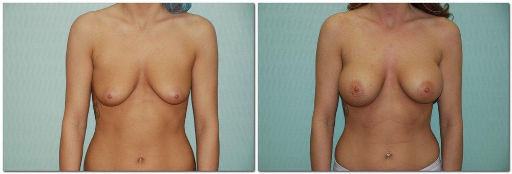 Breast Augmentation 15 - Silicone