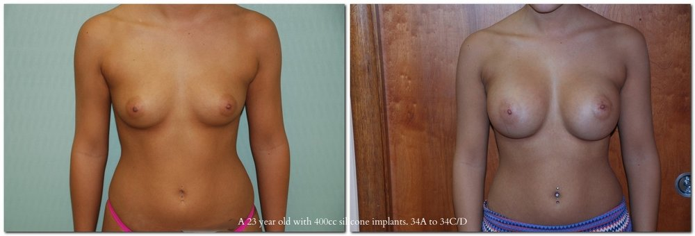 A 23 year old with 400cc silicone implants, 34A to 34C/D