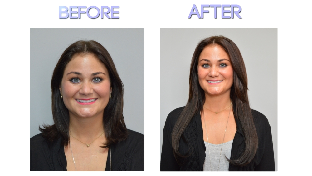 Hair Extensions For Thin Hair Before And After