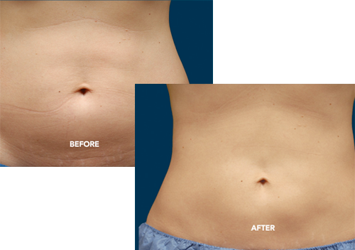 CoolSculpting-Before-After.png