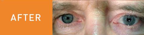 Dan's eye after surgery.