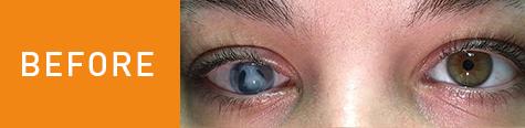 Gabby's eye before surgery.