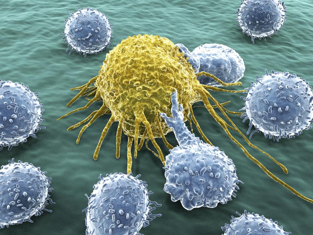 celula de cancer atacada por sistema inmune.jpg