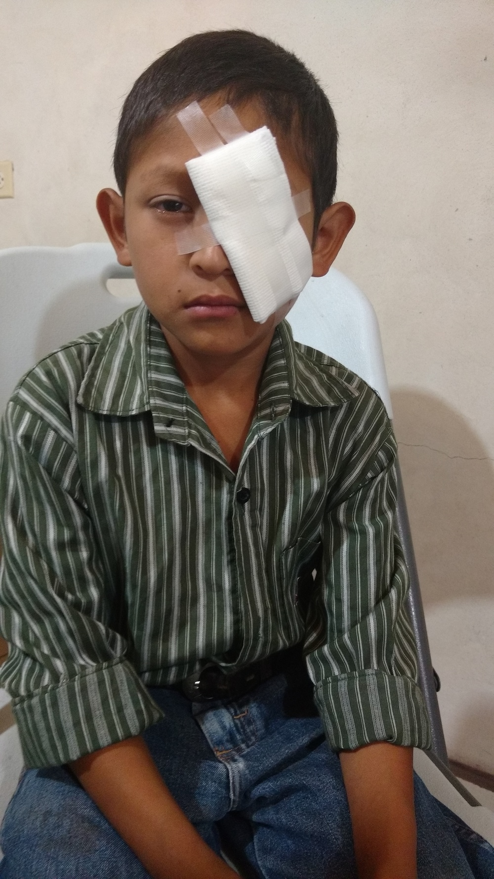 This young man was referred for urgent Ophalmology assessment after an injury to his eye. We made him an eye patch, as he had become very sensitive to light.