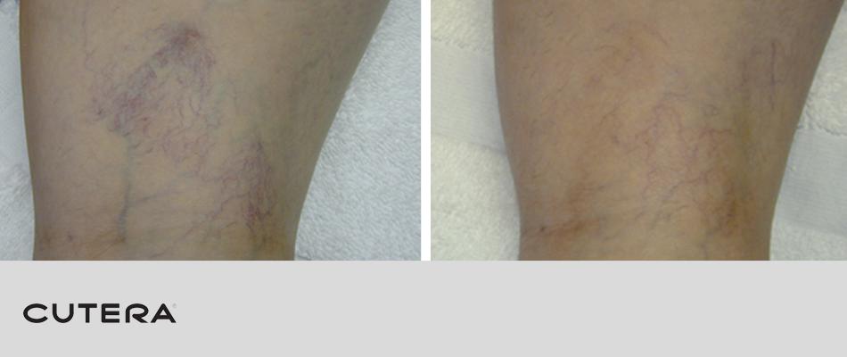 laser-vein-removal-2.png