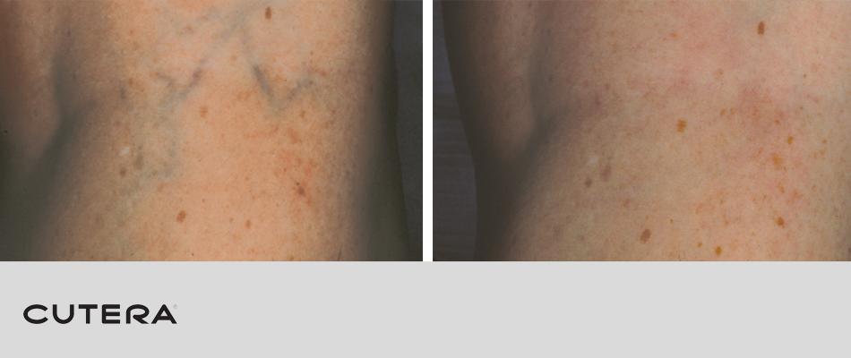 laser-vein-removal-3.png