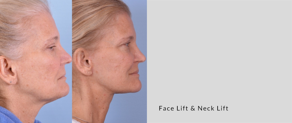 face-neck-lift02.png