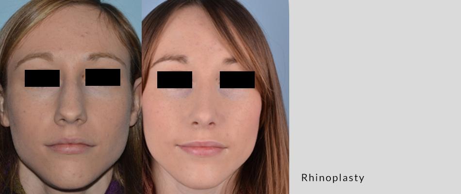 rhinoplasty04-3.png