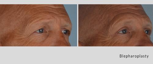 blepharoplasty 7-18-2.jpg