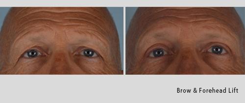 brow & forehead lift 7-18-1.jpg
