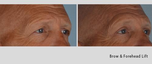 brow & forehead lift 7-18-2.jpg