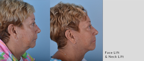 Chad Glazer_Face lift_Neck lift_Sept18_side.jpg