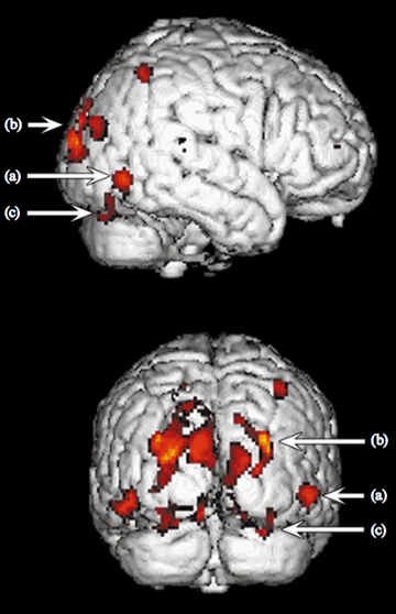 Voxels showing significantly greater activation for coherent motion compared to dynamic noise, for subject RA. Statistical parametric mapping is rendered on right lateral (upper) and posterior (lower) views of a standard brain: voxels with z-scores greater than 3.09 (p<.001) belonging to clusters of more than one voxel (k=1.28, p=.05) which are 3 cm or less from the surface of the normalised brain are illustrated. The foci in (a) V5, and (b) putative V3A can clearly be seen, as can (c) a strip of the ventral surface focus. There is no activity around the occipital pole.