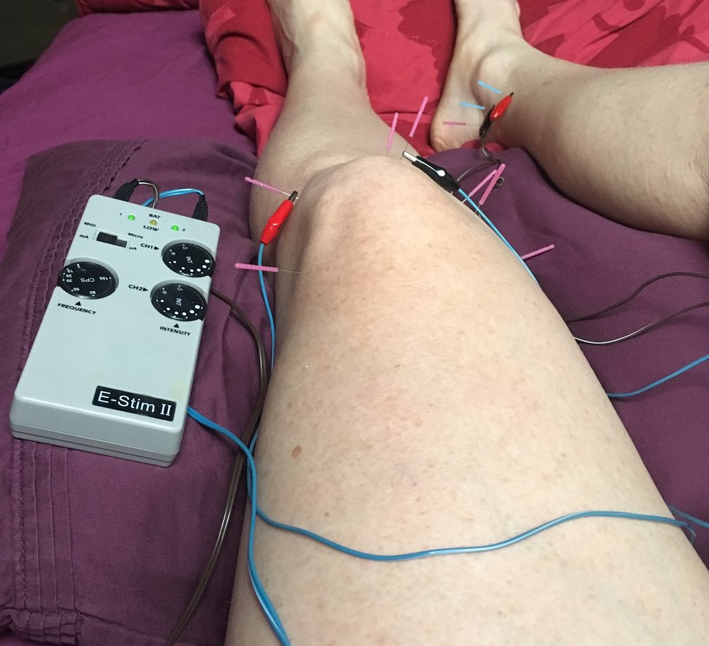 Acupuncture with E-stim.