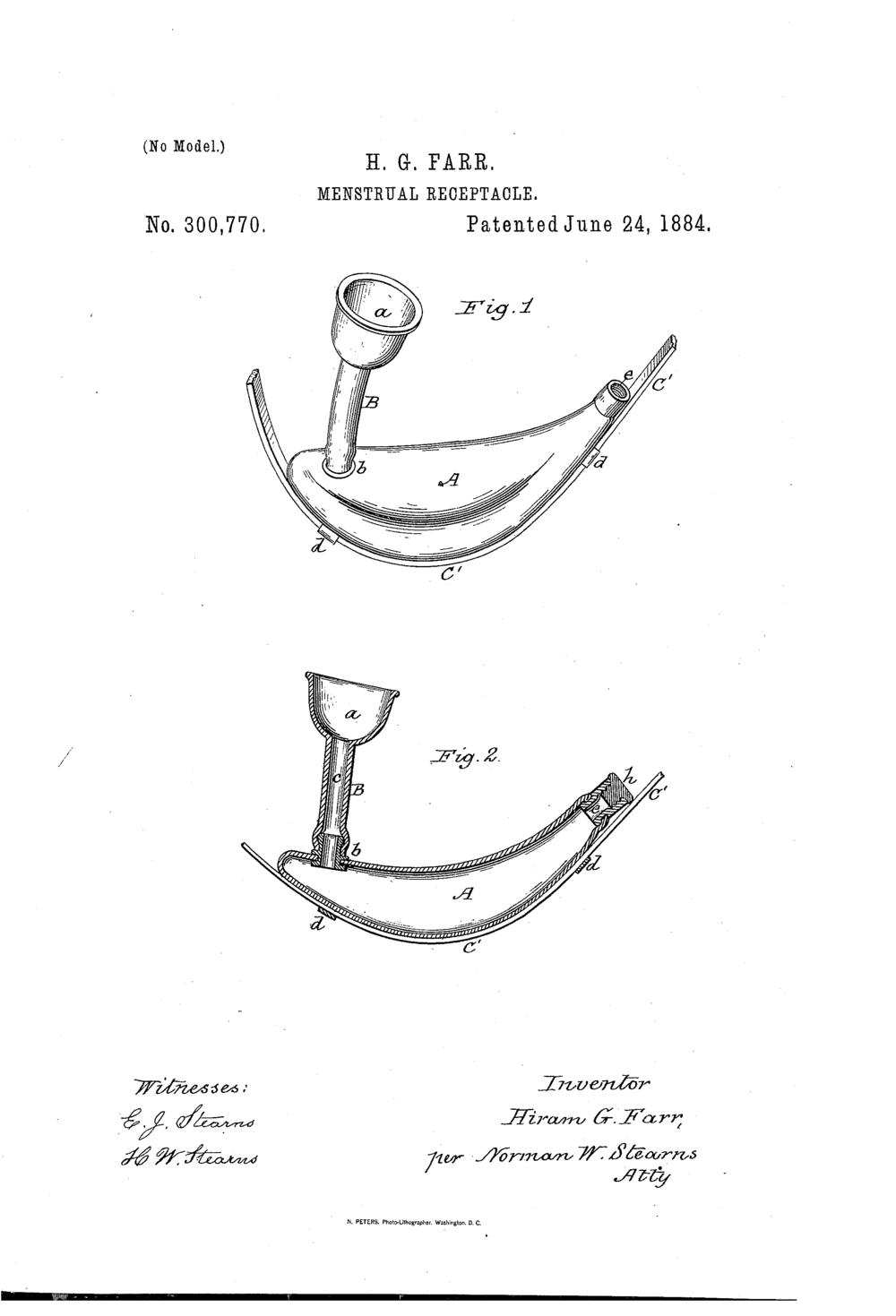 catemenial sac diagram 3.png