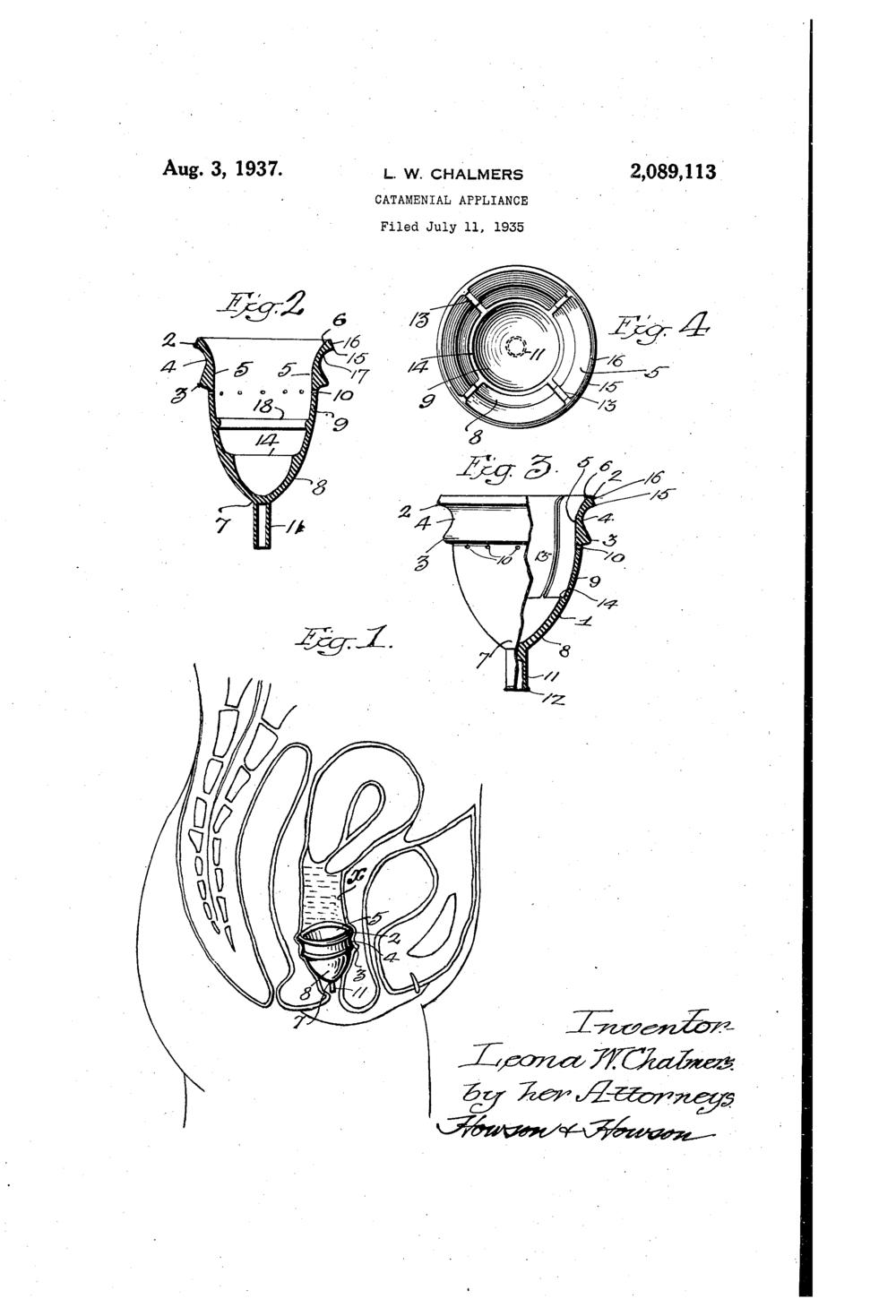 Photo Courtesy of  Catamenial Patents
