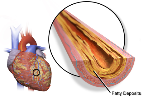 Coronary heart disease is caused by fatty deposits in the arteries, but is meat a cause?