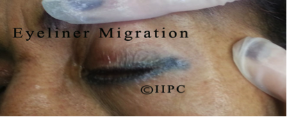 Photo is not our work. Photo used with permission from the IIPC